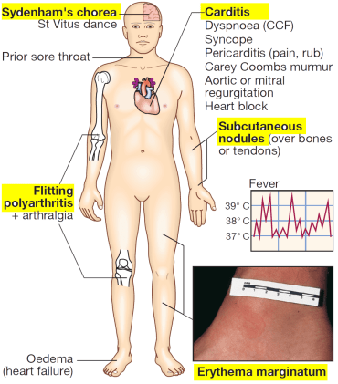 Clinical features of rheumatic fever - davidson 614