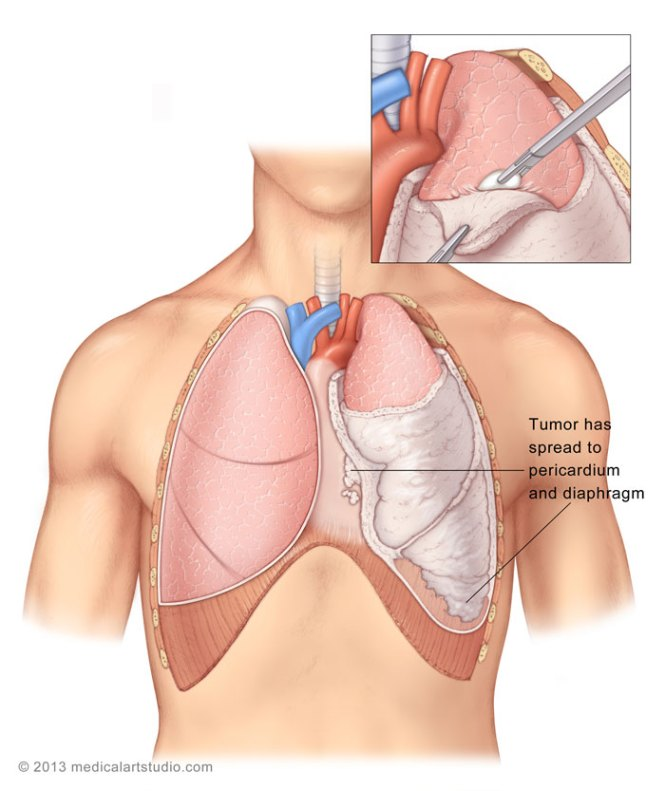 Introduction To Anatomy 5510316 together with Decortication Vats additionally 9296089 likewise Tracheostomy Suctioning together with 4859768. on thoracic membranes and cavities