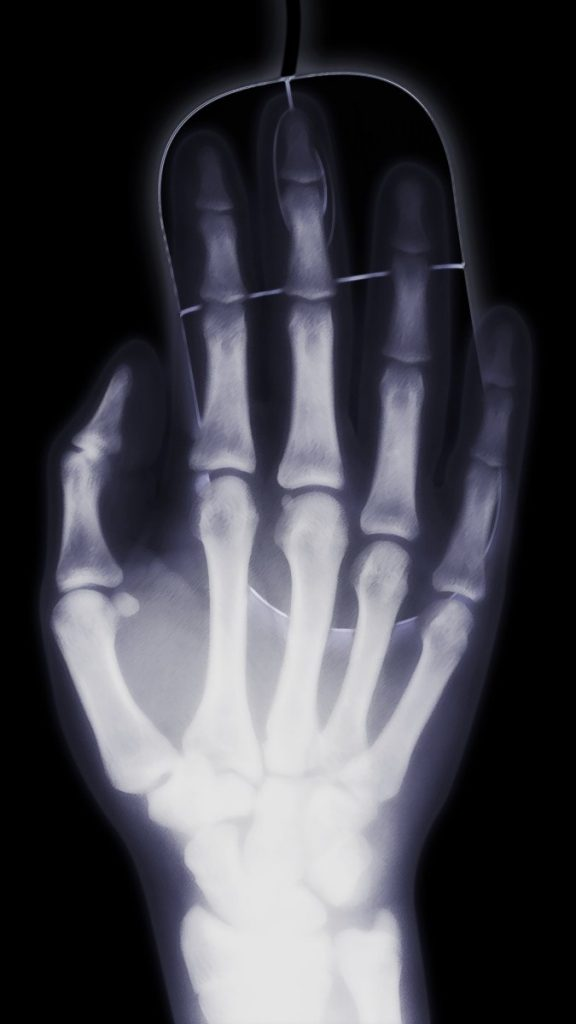 The Most Important Facts About Degenerative Arthritis