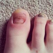weird toes - runners forum