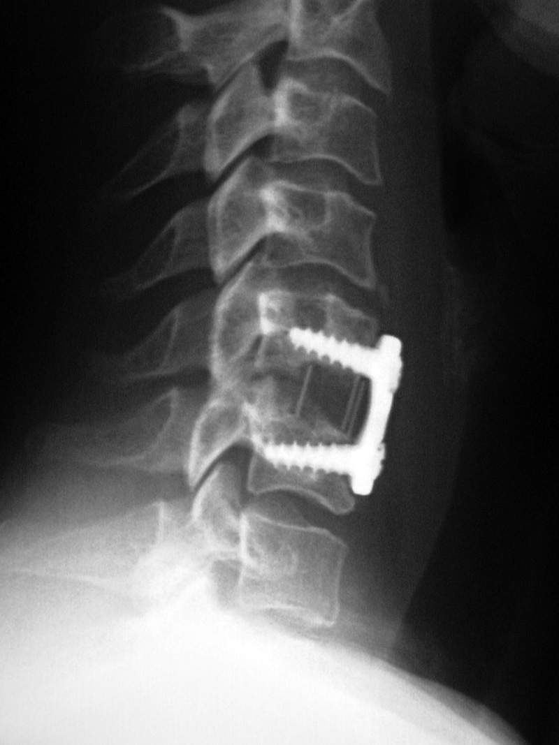 Orthopedic Medical Devices