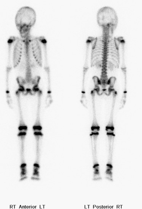 Nuclear Medicine Imaging: Medical Devices & Artifacts
