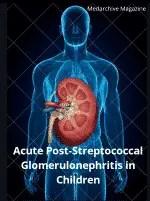 Acute Post-Streptococcal Glomerulonephritis