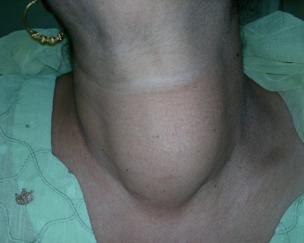 Goitre or thyroid swelling