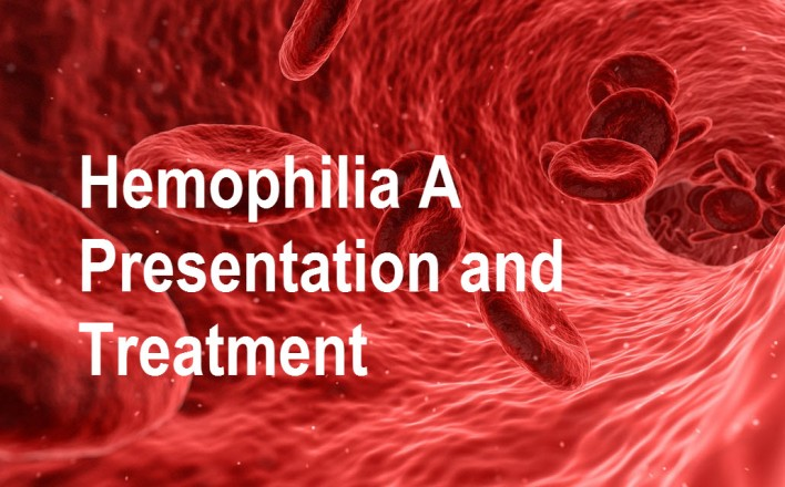 Hemophilia A presentation and Treatment