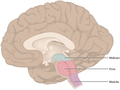Central pontine myelinolysis
