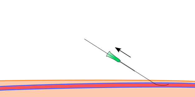 Removal of needle
