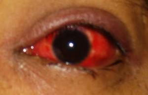 Allergic Conjunctivitis: Simple Allergic and Vernal ...