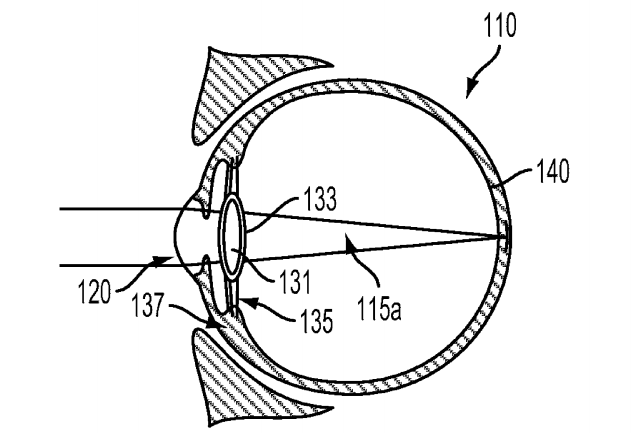 Google seeks patent for implantable, smart intraocular device
