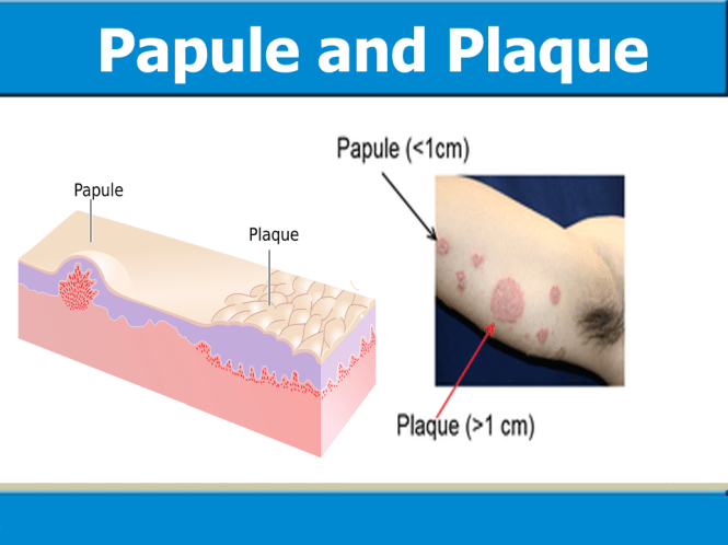 Image result for papule and plaque