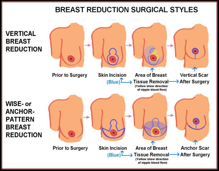 How Breast Reduction Surgery Is Done