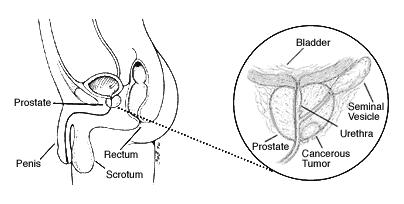 Natural Prevention of Prostatis [Prostate Inflammation
