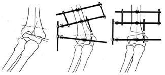 The Treatment of Cubitus Valgus Using the Ilizarov Method