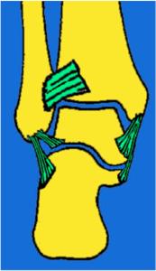 Arthrose de la cheville 1