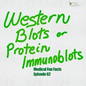 Western blots or protein immunoblots Gary Lum