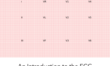 Introduction to the ECG