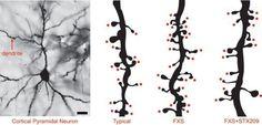 Un fármaco mejora la capacidad social en síndrome X frágil