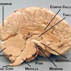 Lateral View Sheep Brain Diagram 2000 Yamaha Yzf R6 Wiring Biology 100: Anatomy & Phys. On Pinterest | Anatomy, And Human Heart