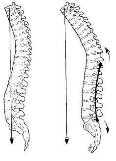 SCOLIOSIS / FLATBACK SYNDROME/ COLLAPSED SPINE SYNDROME on