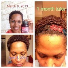 hairfinity on pinterest healthier hair hair growth tips and hair v