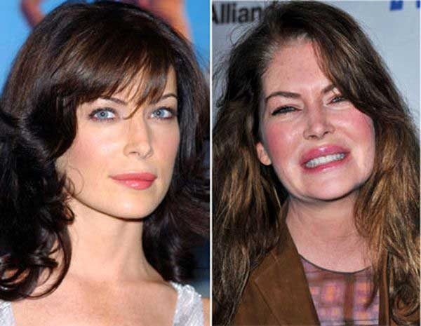 Face Lifts Gone Bad Plastic Surgerys
