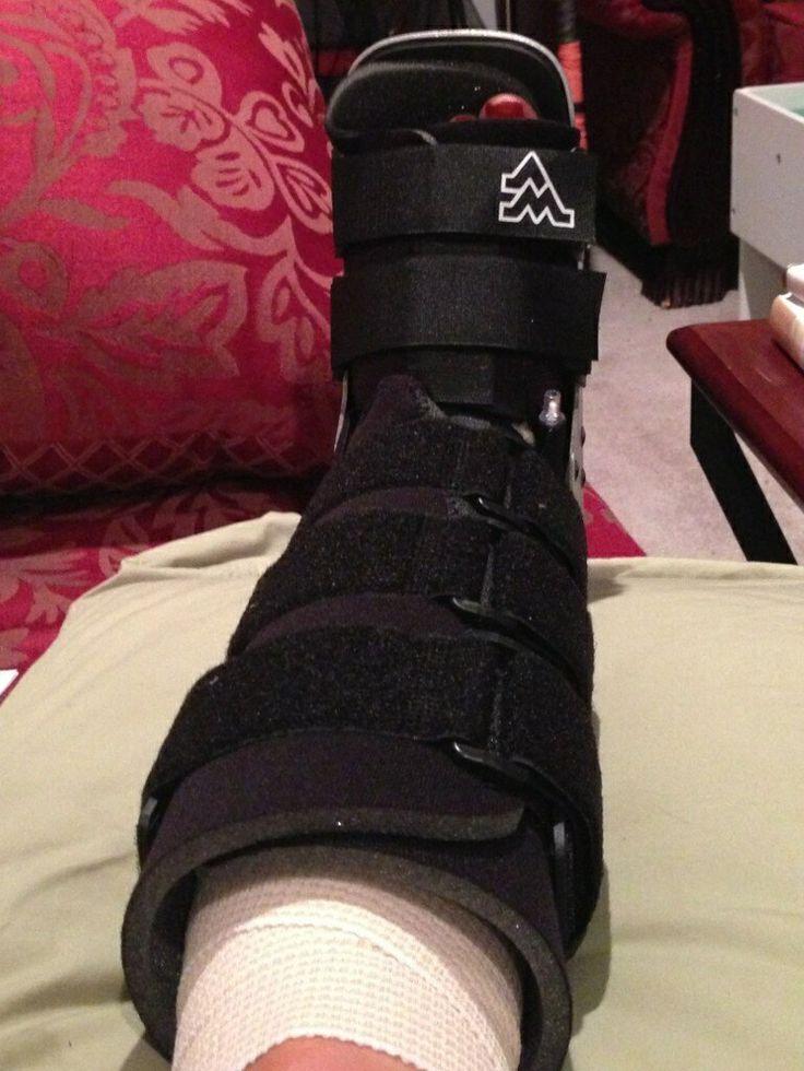 Castboot sprainbroken anklebroken footbroken leg