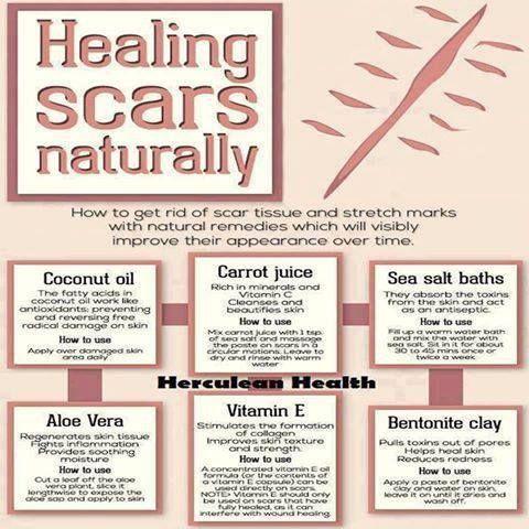 Healing Scar Tissue Naturally~   Body Works   Pinterest