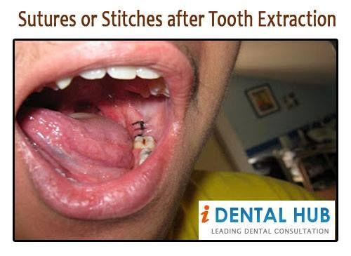Tooth Extraction Stitc...