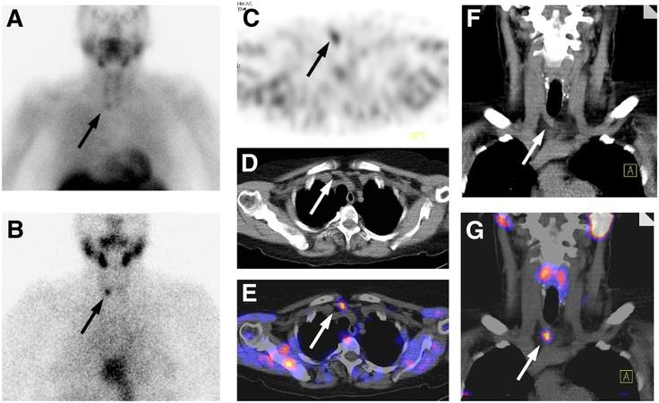 Parathyroid SPECT/CT MEDICAL ILLUSTRATION & INFO Pinterest