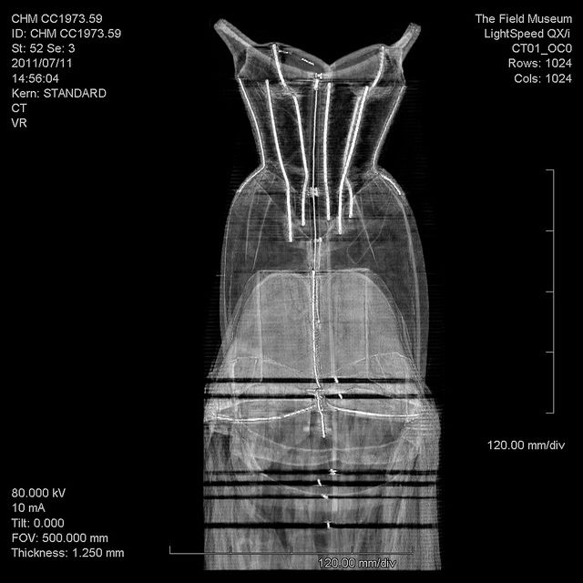 "Charles James ""Tree,"" CT scan 