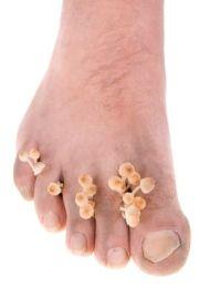 scary toe mushrooms