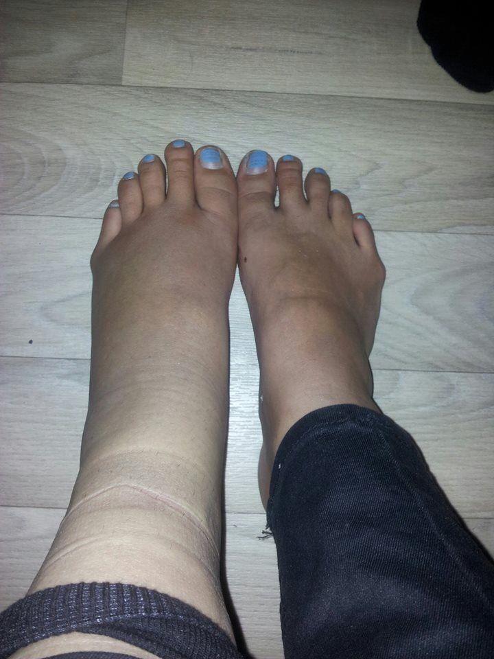 Broken Ankle   Sprain/Broken Ankle/Broken Foot/Broken Leg ...