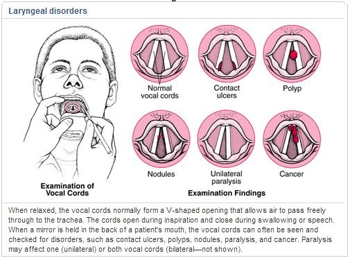 Causes Vocal Cord Nodules