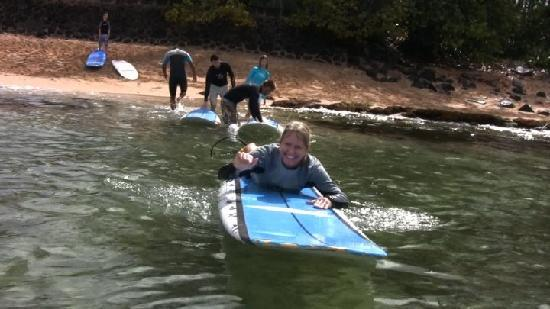 Three Months After Spinal Fusion Surgery Surfing Was My