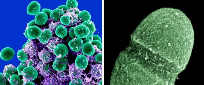 https://i0.wp.com/media-cldnry.s-nbcnews.com/image/upload/t_nbcnews-fp-1240-520,f_auto,q_auto:best/newscms/2014_04/132171/140122-microbiome-hmed-2p.jpg?w=696&ssl=1