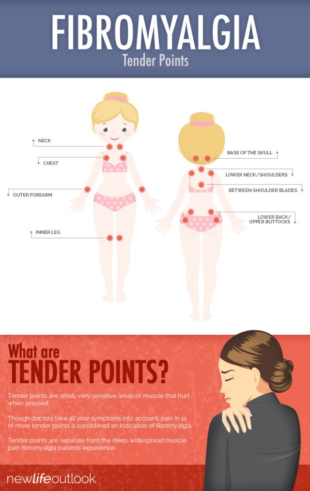 Fibromyalgia Tender Points Diagram