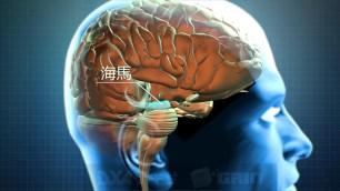 トップナイフ -天才脳外科医の条件-