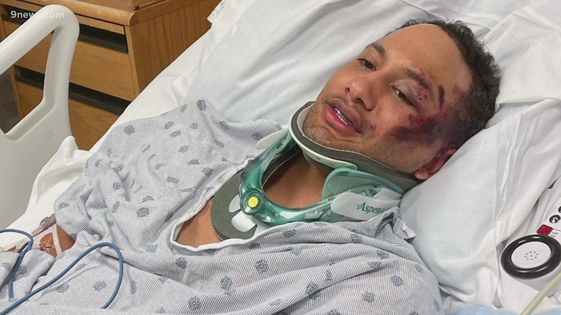 , Man in hospital with multiple broken bones after hit-and-run in LoDo, Nzuchi Times National News