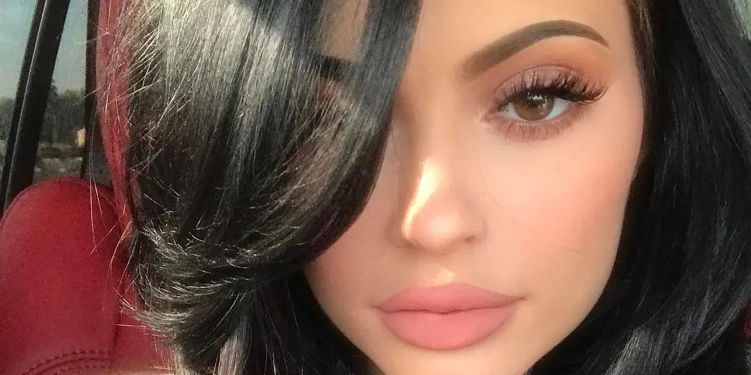 The Exact Reason Your Lip Injections Look Fake Study