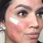 This Makeup Tutorial For Covering Up Acne Is Making Instagram Freak Out Allure