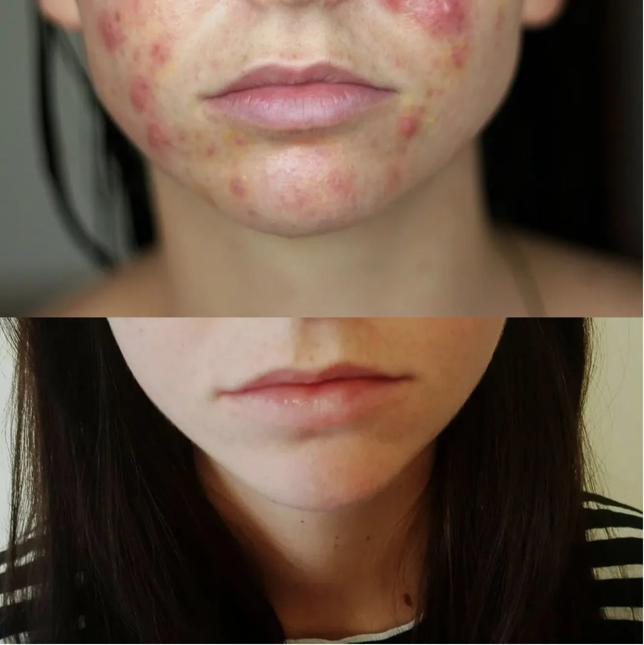 Spironolactone Clears Woman's Acne in 4 Months: Before and ...