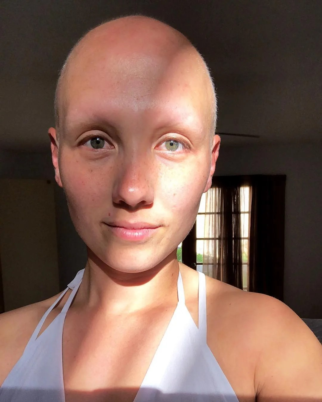 women with no eyebrows