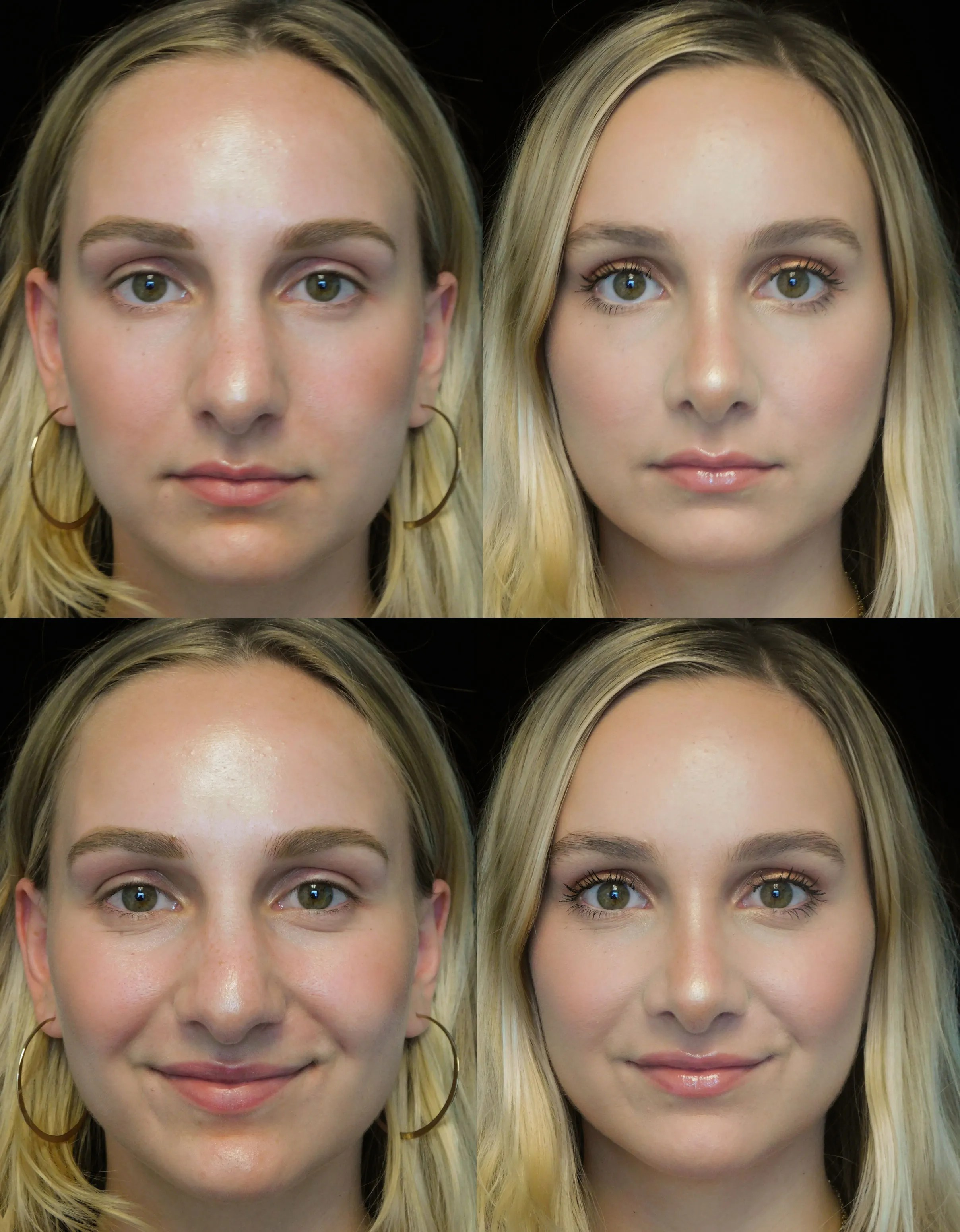 Your Guide to Rhinoplasty From Cost to Recovery Time ...