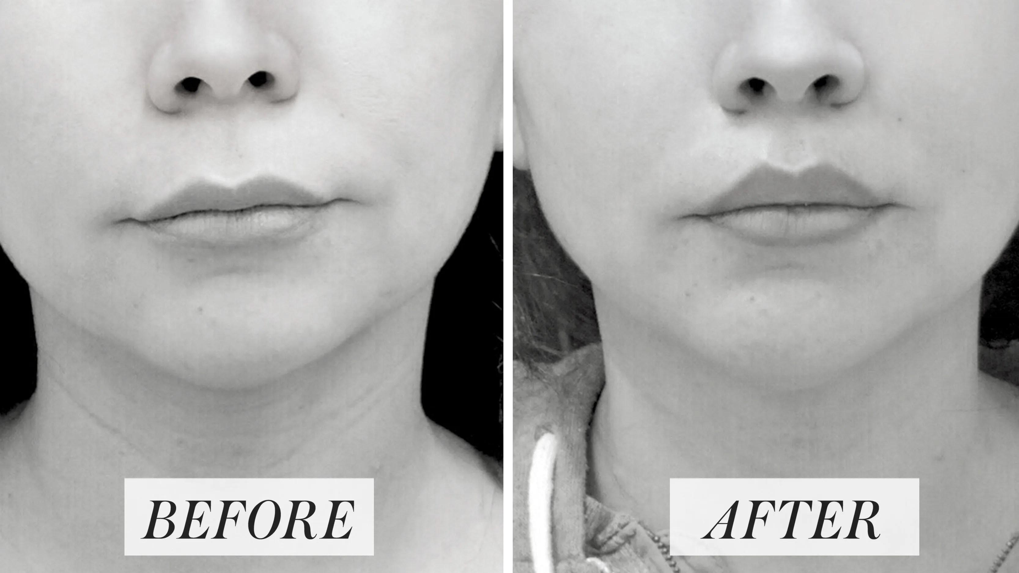 lip lifts experts decode