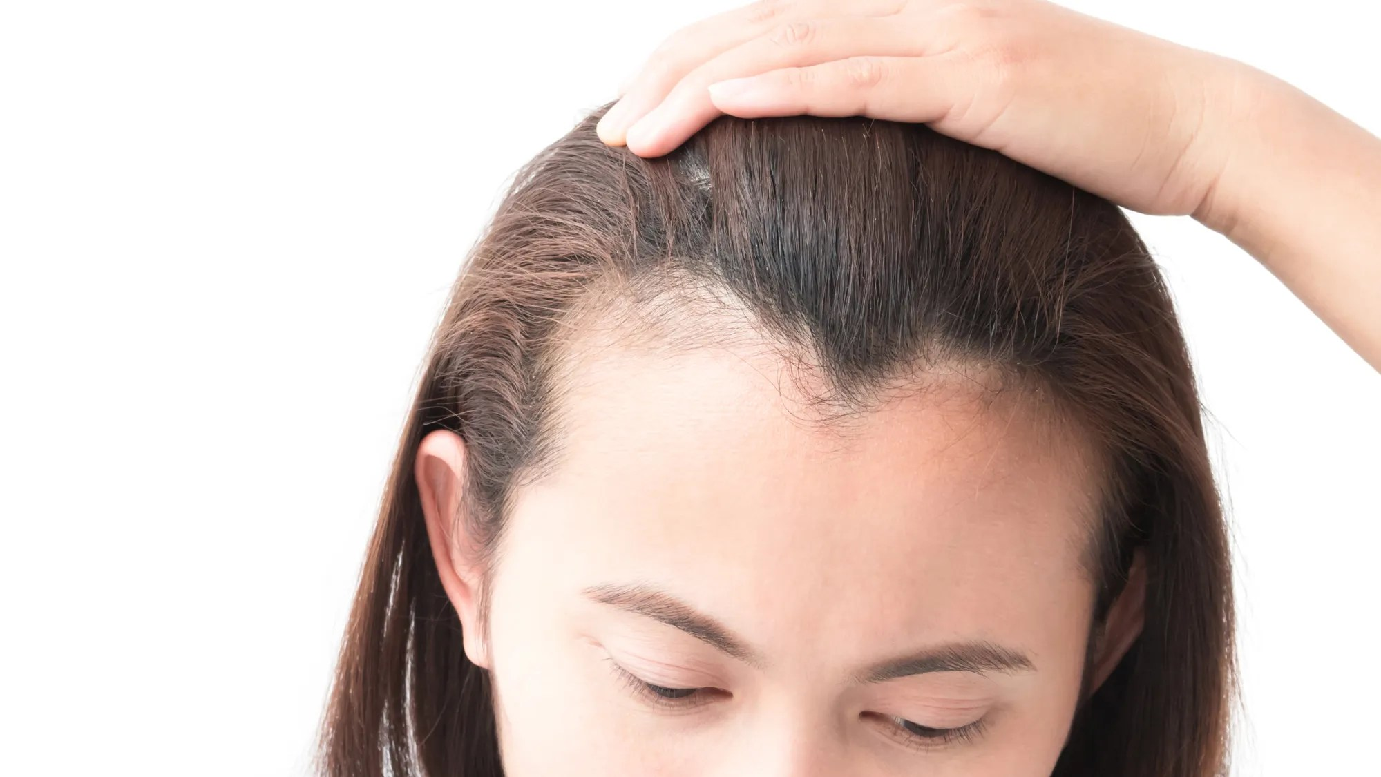 How to Stop and Regrow a Receding Hairline: Best ...