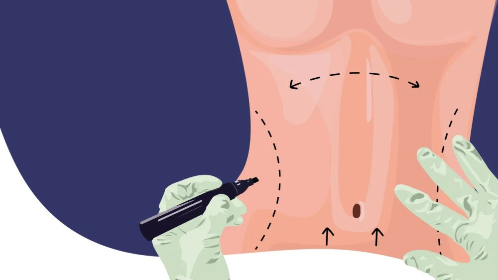 medium resolution of considering a tummy tuck here s what to expect from abdominoplasty