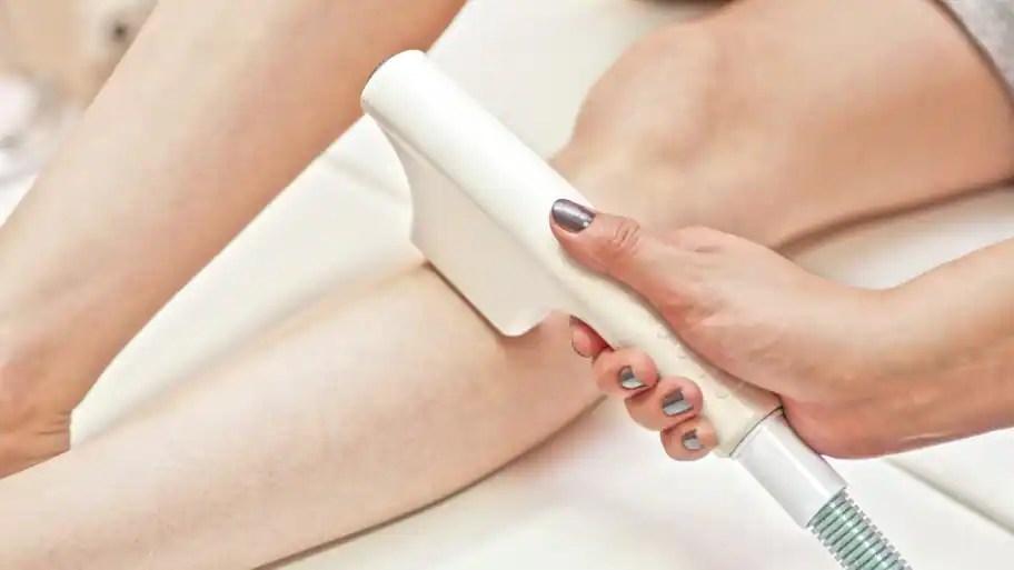 laser hair removal seeking smooth