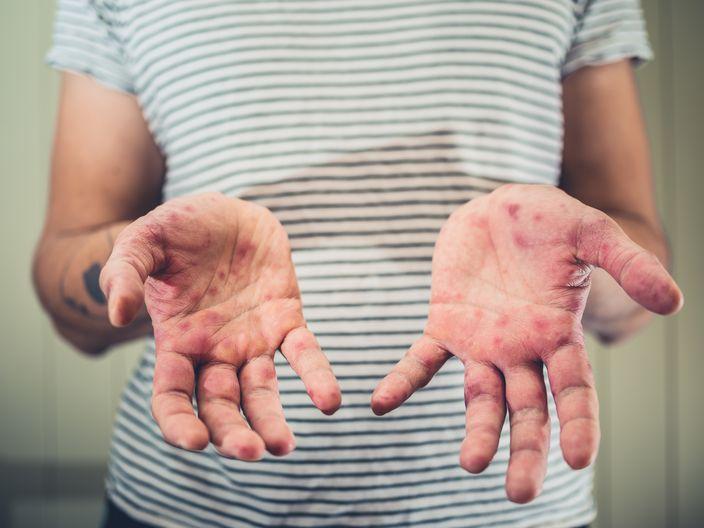手腳指起小水泡原來係患汗皰疹 捱夜壓力大都可能係成因   生活事   巴士的報