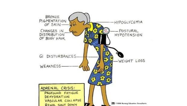 anemia di improvvisa perdita di peso