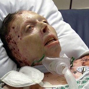 Judy Malinowski tras el ataque | www.abc6onyourside.com